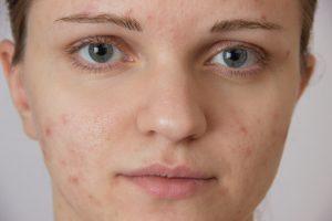 Adult acne treatments north coast medispa